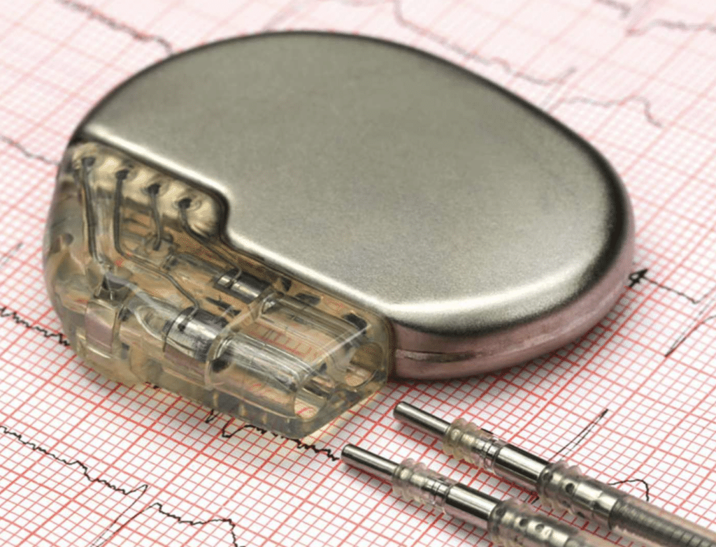 An implantable pacemaker sat on ECG paper with cardiogram results printed on it